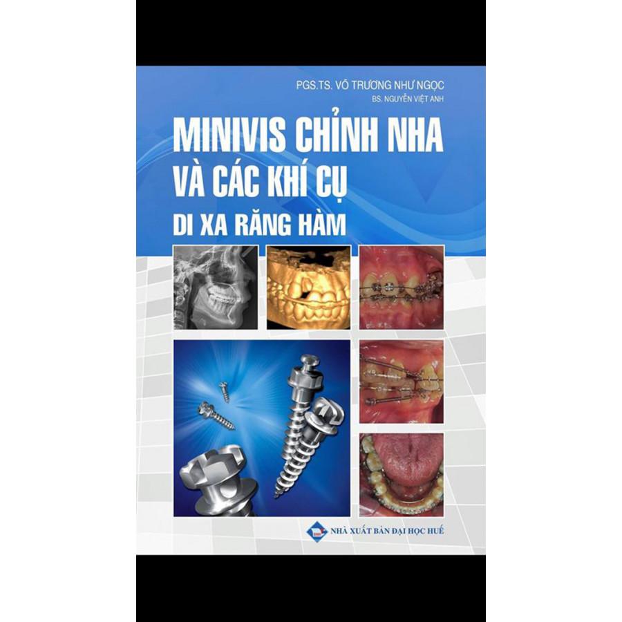 Minivis chỉnh nha và các khí cụ di xa răng hàm